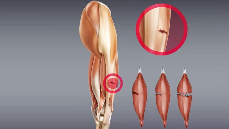 Erkennt einen wie im oberschenkel muskelfaserriss man Muskelfaserriss: Symptome